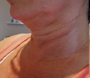 Picture of neck after session 2