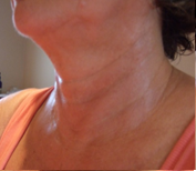 Picture of neck after session 6